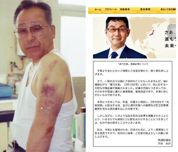 中村氏の左腕に残る痛々しいアザ(左・提供写真)、河井氏の公式HPから削除された抗議文