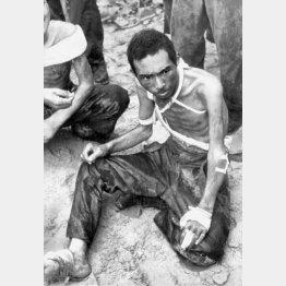 骨と皮だけになり、米軍に捕らえられた日本兵(1943年2月、ガダルカナル島)/(C)共同通信社
