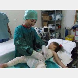 やけどを負った少女(シリア・イドリブ、2013年)/(本人提供)