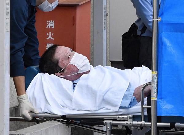 京アニ放火犯を救った1000万円の治療費 誰が負担するのか|日刊 ...