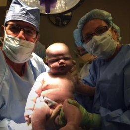 豪で体重6.5kgの記録的な巨大赤ちゃん誕生 世界的な話題に