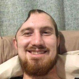 頭蓋骨の右半分を失った! ニュージーランド男性がバーで被害者に